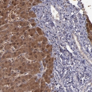 NBP1-90305 - Alpha-2-antiplasmin / SERPINF2