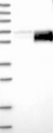 NBP1-90302 - Alpha-2-HS-glycoprotein