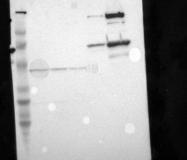 NBP1-85491 - Alpha-2-macroglobulin