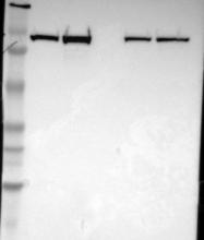 NBP1-85791 - Alpha-actinin-1 / ACTN1