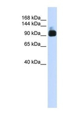NBP1-55292 - Alpha-actinin-3 / ACTN3