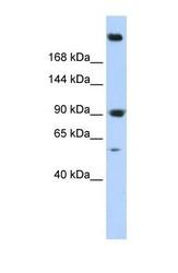 NBP1-53093 - Spectrin alpha chain (brain) / SPTAN1
