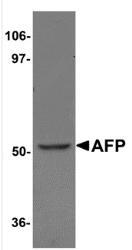 NBP1-76275 - Alpha-fetoprotein / AFP