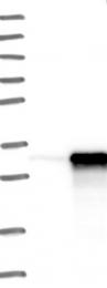 NBP1-90179 - THOC4 / ALY