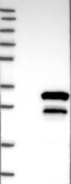 NBP1-90175 - STXBP6 / Amysin