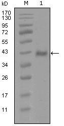 NBP1-51554 - Androgen receptor