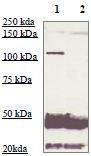 NBP1-74687 - Androgen receptor
