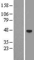 NBL1-07644 - Androgen Receptor Lysate