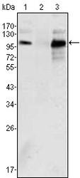 NBP1-47471 - Androgen receptor