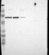 NBP1-91665 - Angiomotin-like protein 1 / AMOTL1