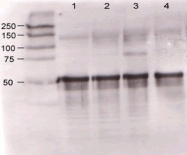 NB600-629 - Angiopoietin-1