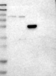 NBP1-90169 - Angiopoietin-1