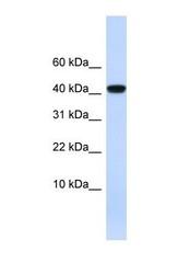 NBP1-59309 - Angiotensinogen