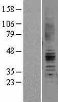 NBL1-07397 - Angiotensin II Type 2 Receptor Lysate