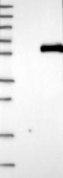 NBP1-87053 - Angiotensinogen
