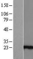 NBL1-07541 - Ankyrin repeat domain 39 Lysate
