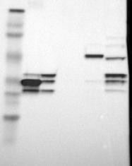 NBP1-90156 - Annexin A10 / ANXA10