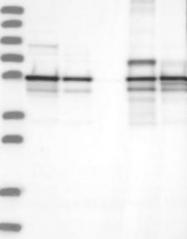 NBP1-90160 - Annexin A11 / ANXA11