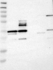 NBP1-90157 - Annexin A13 / ANXA13