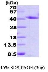 NBP1-37086 - Annexin A2 / ANXA2