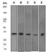 NBP1-95268 - Annexin A5 / ANXA5