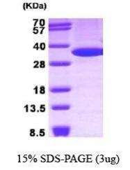 NBP1-30265 - Annexin A5 / ANXA5