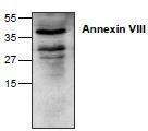 NBP1-45347 - Annexin A8 / ANXA8
