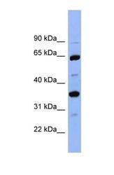 NBP1-57918 - SERPINC1 / Antithrombin-III