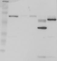 NBP1-90076 - SERPINC1 / Antithrombin-III