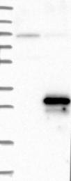 NBP1-90139 - APC11 / ANAPC11