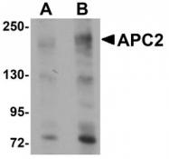 NBP1-77376 - APC2