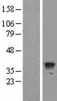 NBL1-07796 - Apg3 Lysate