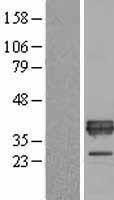 NBL1-07621 - ApoE Lysate