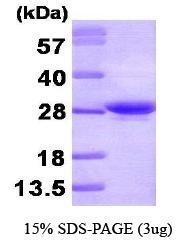 NBP1-30197 - Apolipoprotein A I (APO AI)