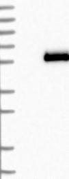 NBP1-90046 - Apolipoprotein H (Apo H)