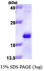 NBP1-41151 - Apolipoprotein M (Apo M)