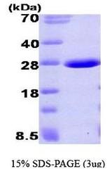 NBP1-40397 - UBE2L3 / UBCH7