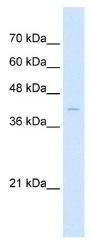 NBP1-79278 - Arrestin beta-2 / ARRB2