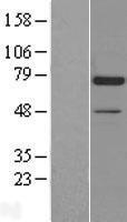 NBL1-09743 - Artemis Lysate