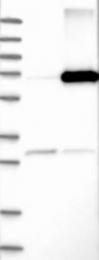 NBP1-87486 - Arylsulfatase D