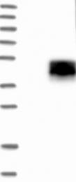 NBP1-85580 - ASGR1