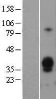NBL1-07762 - Asialoglycoprotein Receptor 1 Lysate
