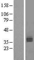 NBL1-07763 - Asialoglycoprotein Receptor 2 Lysate