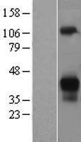 NBL1-07764 - Asialoglycoprotein Receptor 2 Lysate