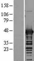 NBL1-11207 - Aspartate Aminotransferase Lysate