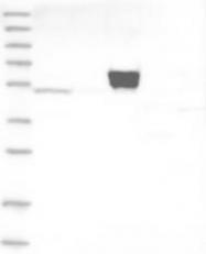 NBP1-91684 - Aspartyl aminopeptidase