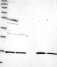 NBP1-91685 - Aspartyl aminopeptidase