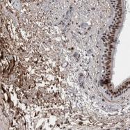 NBP1-89854 - Asporin