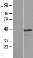 NBL1-07856 - Aurora A Lysate