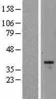 NBL1-07860 - Aurora B Lysate
